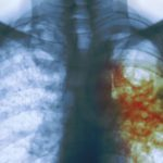 Marijampolės apskrityje sergamumas tuberkuliozė nežiugina