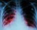 Kovo 24 – oji pasaulinė tuberkuliozės diena. Sergamumas tuberkulioze Marijampolės apskrityje vis dar  aukštas